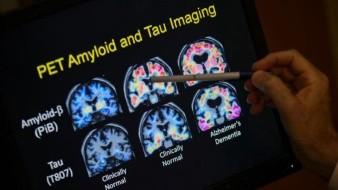 Pocos ancianos son sometidos a exámenes para detectar Alzheimer