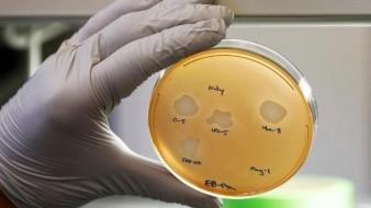 Gérmenes, posible alternativa a los antibióticos para curar