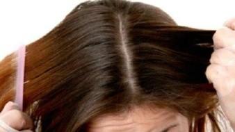 Tips efectivos para quitar el cabello graso