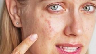 ¿El acné aparece por comer alimentos grasosos?