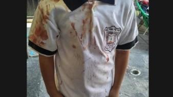 Con uniforme ensangrentado, madre denuncia bullying escolar en Morelos