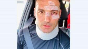 Atropellan a Lionel Scaloni, DT de la Selección de Argentina; sufrió heridas leves
