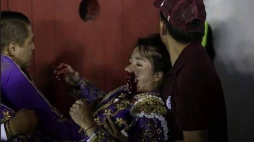 La intervención se realizó en Puebla, donde fue herida por la corneada de su quinto toro, la cual duró aproximadamente 6 horas.(Especial)