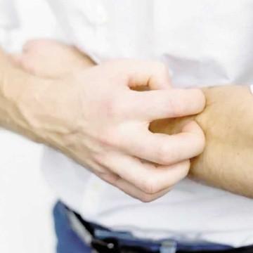 enfermedad rascarse la piel