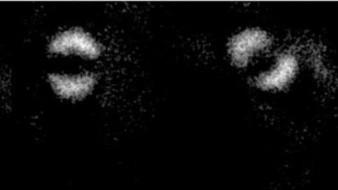 Obtienen la primera imagen del 'entrelazamiento cuántico' de Einstein