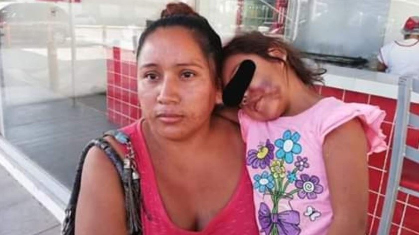 Su hija acaba hospitalizada tras salir de kínder(Twitter/ @ciemergencias)