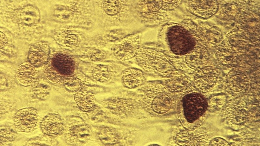 Imagen de microscopio de la bacteria clamidia.(AP)