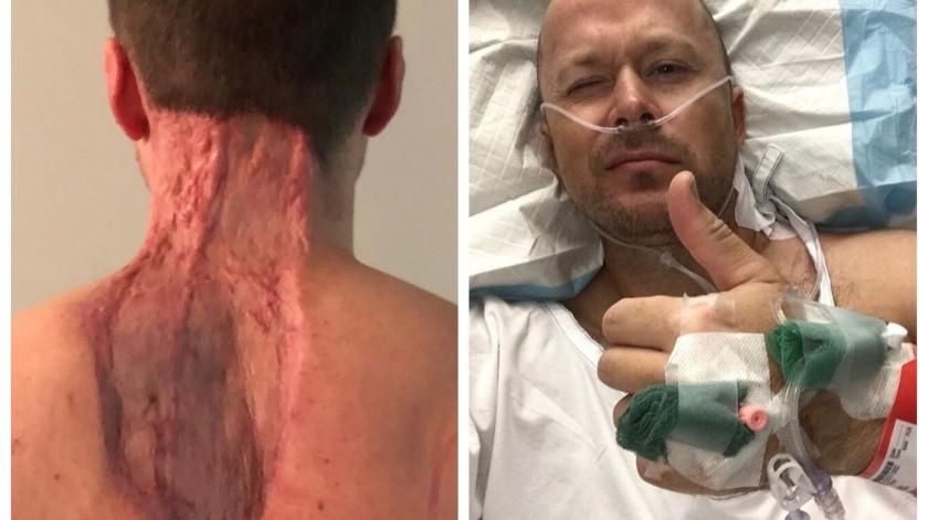 Un padre de familia al que le arrancaron un enorme trozo de piel del cuello para extirpar un melanoma mortal emitió una advertencia a todos a los que les gusta asolearse.(Facebook)