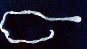 Después del procedimiento de dos horas, los médicos eliminaron un parásito Sparganum mansoni, una tenia que se encuentra comúnmente en los intestinos de gatos y perros.