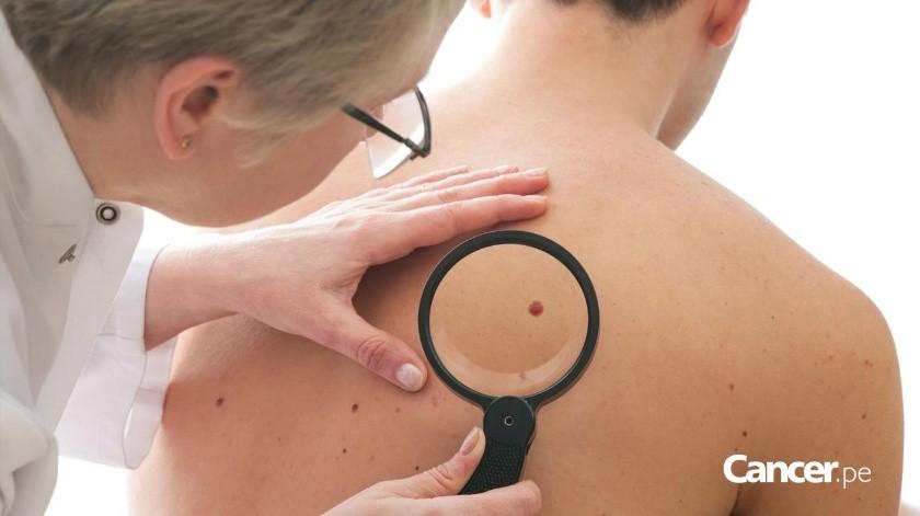 Expertos explicarán todo sobre el cáncer de piel(Banco Digital)