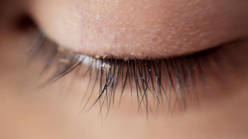 Alertan sobre aparición de piojos por uso de pestañas postizas(Cortesía)