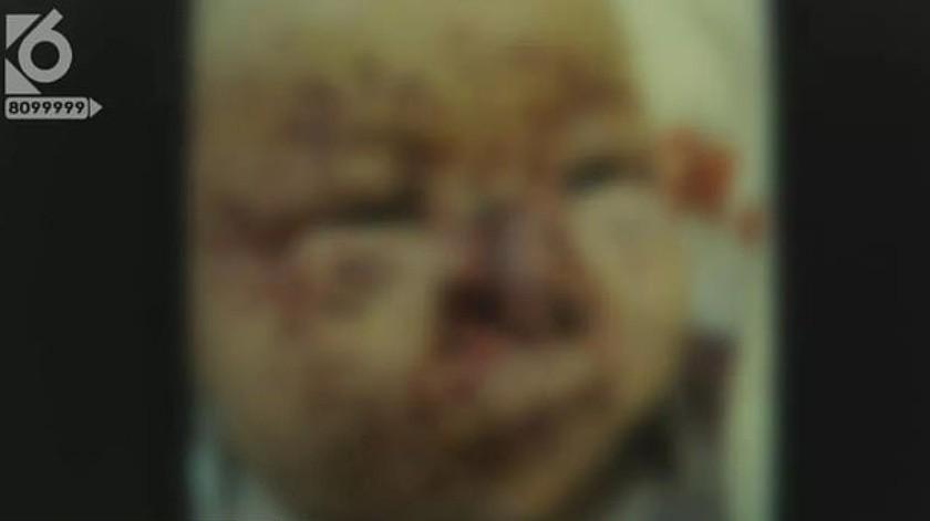Padres olvidan limpiarle la carita a su bebéy ratones le carcomen el rostro(Captura de video)