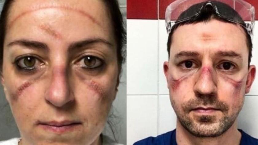 Así lucen los rostros de los médicos que luchan contra el Covid-19(Info7)