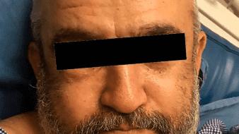 En el hospital, vinculan a proceso a hombre al de matar a su esposa en SLRC