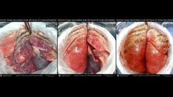 Reparan pulmones humanos dañados al conectarlos a cerdos vivos