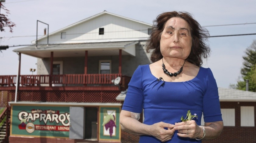 Muere a los 57 años la primera mujer que recibió trasplante facial en EU(Pixabay)