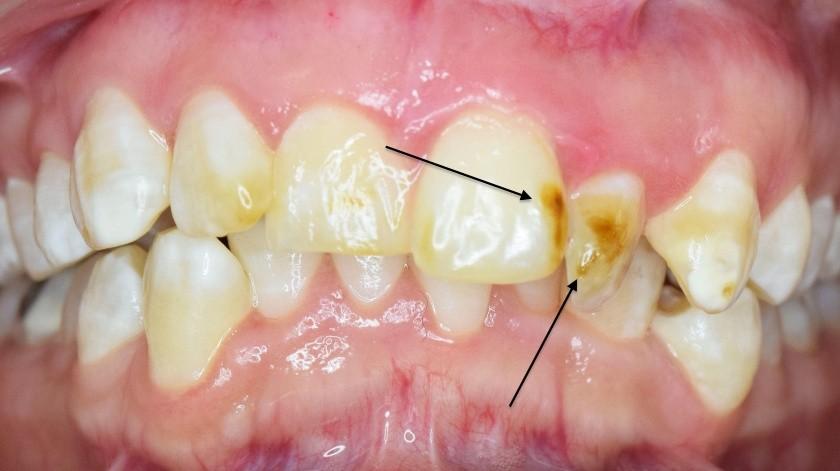 De esta manera inicia la caries dental y la ingesta de fluoruro lo que hace es ayudar a la persona a protegerse de esta enfermedad.