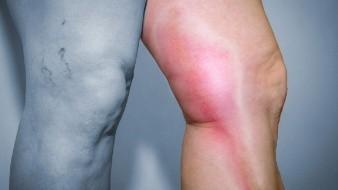 Alertan médicos españoles sobre riesgo de trombosis a causa de confinamiento