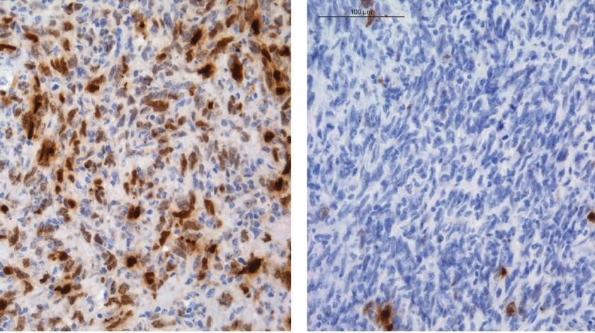 Células del tumor cerebral (en azul) bajo tratamiento con temozolomida, con daño en el ADN marcado en color marrón. Fotografía cedida por el Centro Nacional de Investigaciones Oncológicas (CNIO).(EFE)