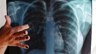 Tuberculosis, otra enfermedad contagiosa más de mil 700 casos y 111 muertes