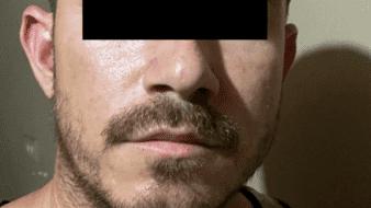 Detienen FGE a sujeto con dosis de droga sintética tras cateo