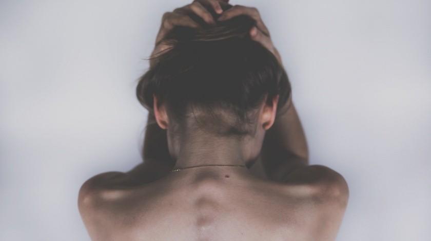 Anna Byard-Golds ha tenido eczema toda su vida. La joven, de 15 años, compartió con la BBC la experiencia de vivir con esta dolorosa condición dermatológica que no tiene cura.(Pixabay)