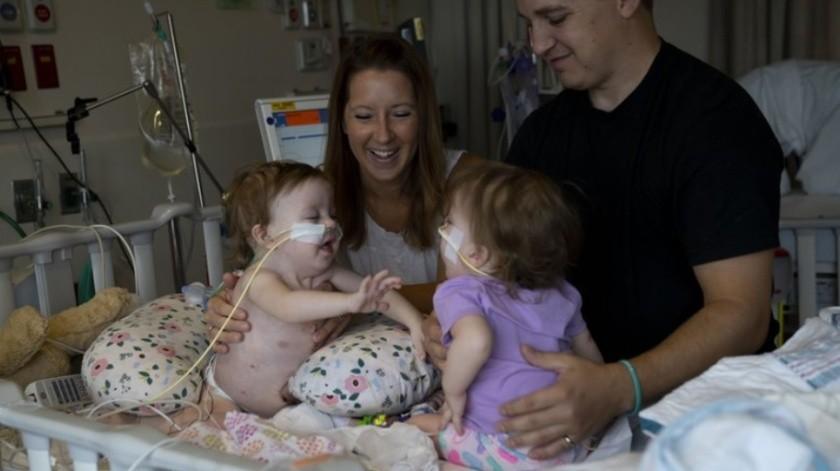 Alyson y Phil Irwin, padres de Sarabeth y Amelia Irwin, visitan el Hospital C.S. Mott el 26 de agosto del 2020, luego de una exitosa operación para separar a las niñas. (Joe Hallisy/Michigan Medicine via AP)(AP)