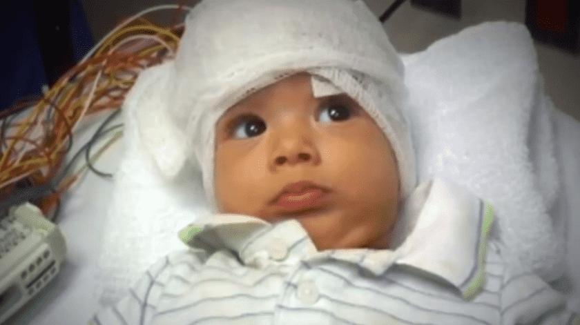 El resultado después de los primeros tratamientos fue contundente en la salud del pequeño.(Univisión)