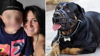 Pequeño de 5 años sobrevive a ataque de perros y ahora soporta