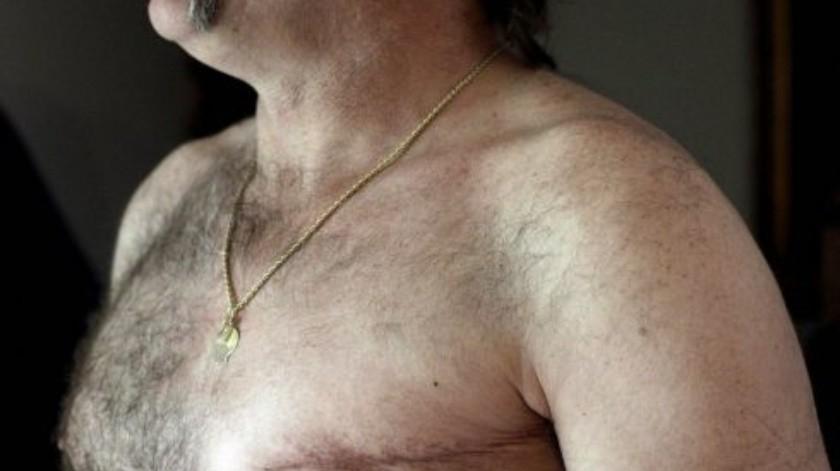 La condición más adversa en los hombres respecto al cáncer de mama es la detección tardía.(Tomada de la red)