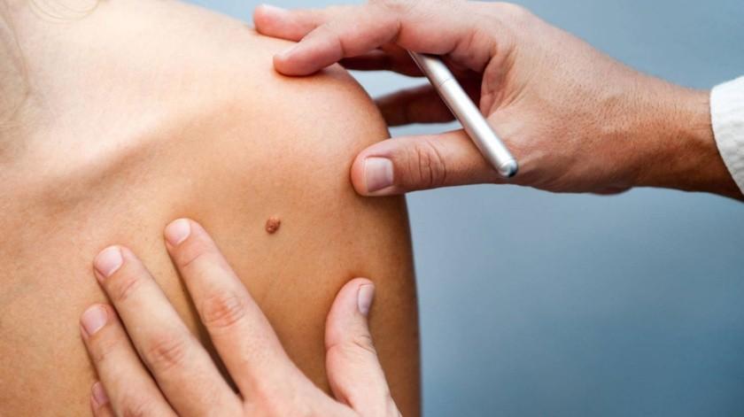 El melanoma es un tipo de cáncer de la piel que se desarrolla en las células de la piel llamadas melanocitos.(Tomada de la red)