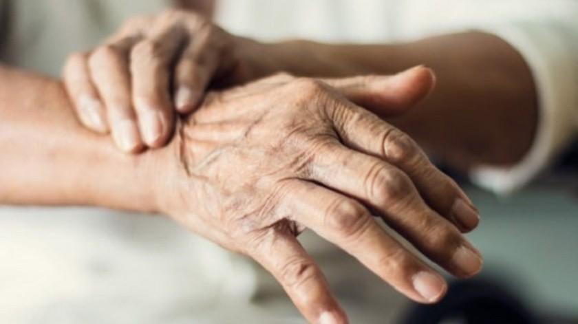 Una simple prueba de la piel puede ayudar a diagnosticar el Parkinson