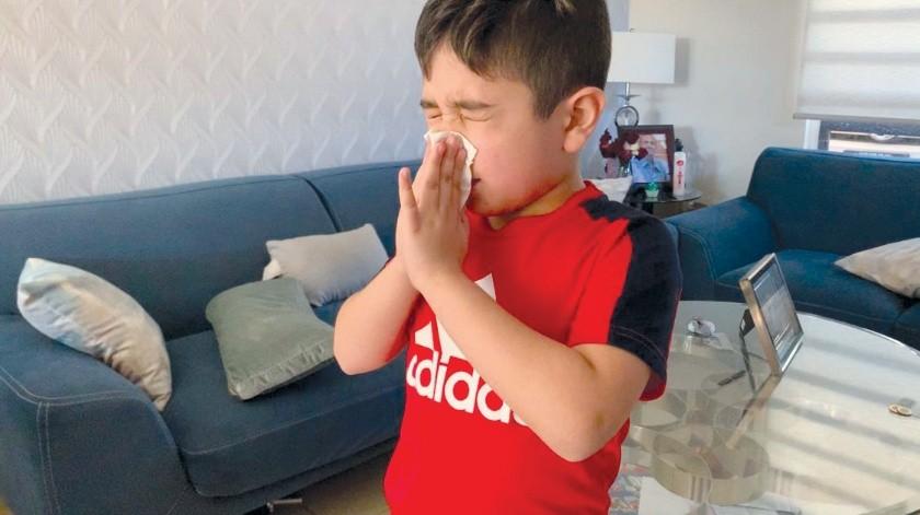 El clima es un indicador muy importante para las alergias(Mayra Echeverría)