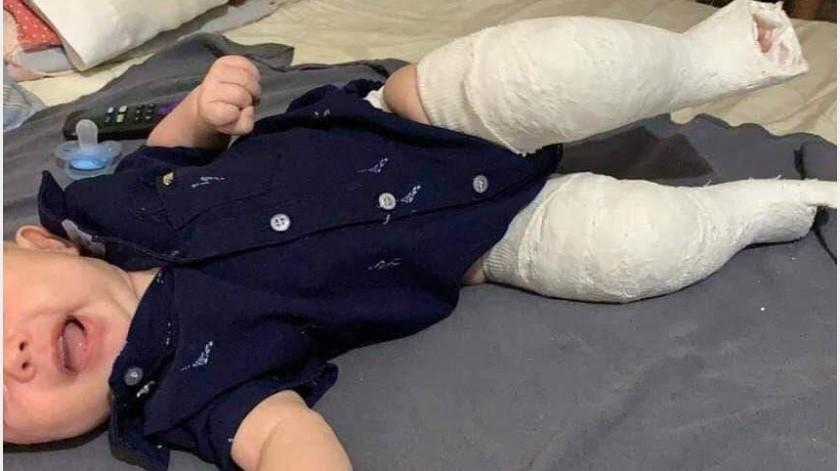 El pequeño Alexander necesita apoyo para poder ser operado.(Especial)