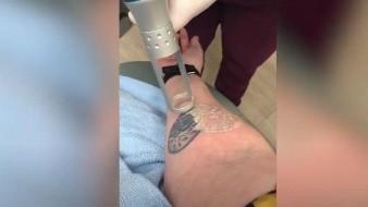 Mujer muestra el proceso de como eliminó su tatuaje