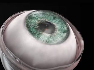Recupera la vista tras un implante de córnea artificial de nuevo tipo