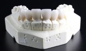 También si mordió alguno muy duro o un golpe durante un accidente podría poner en riesgo su diente.